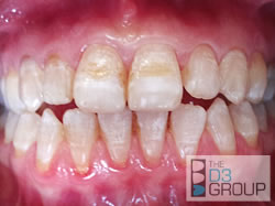 D3 Group Developmental Dental Defects What Are D3s